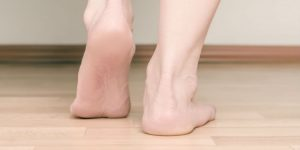 flat feet vs fallen arches